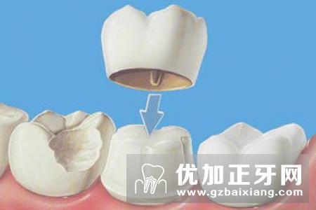 全瓷牙修复牙齿选择哪种好