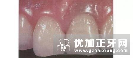 固定义齿修复体边缘设计