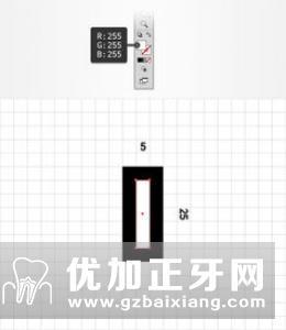 自制牙合平面规确定牙合平面