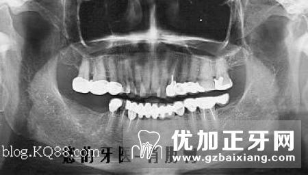 老人镶活动义齿还是固定义齿好?