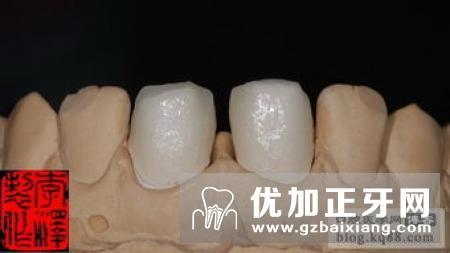 牙齿贴面的使用寿命是多长