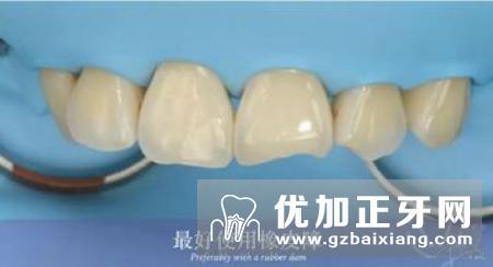 超薄瓷贴面的应用及其临床局限性