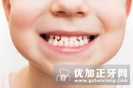 孩子恒牙长歪了怎么办?