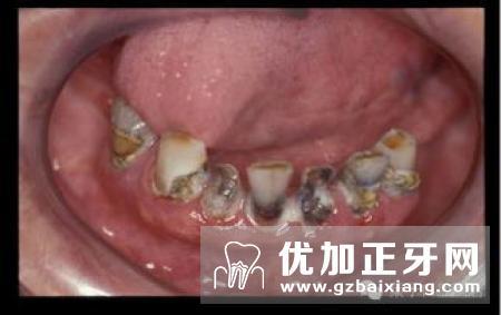 中老年人常见的口腔问题